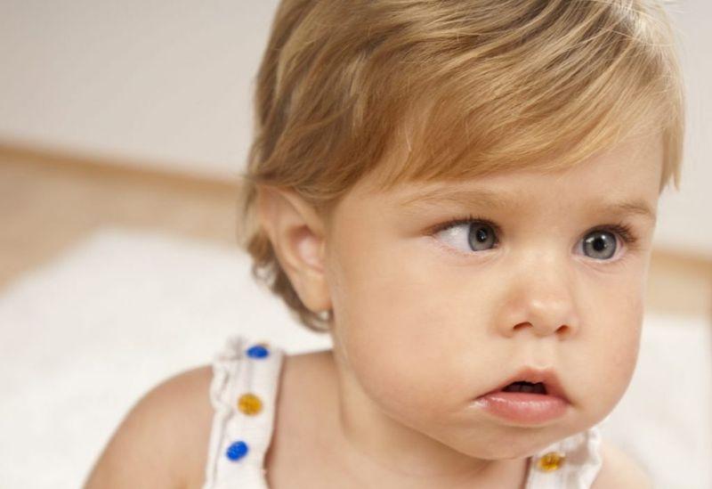 Esotropia in babies