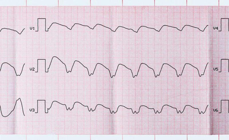 signs of tachycardia