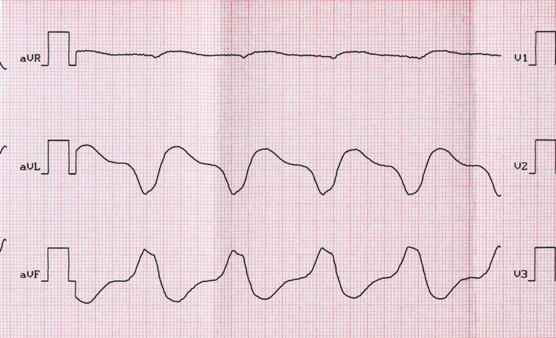 causes of Ventricular fibrillation
