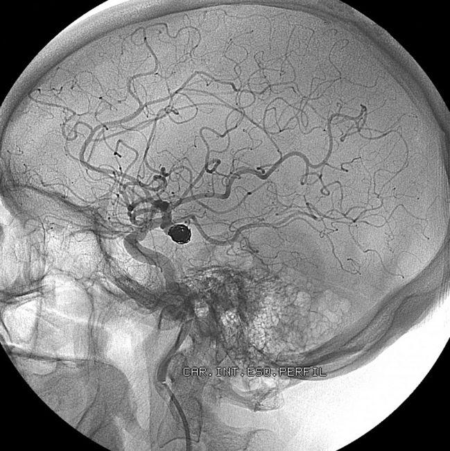 treatment brain aneurysm