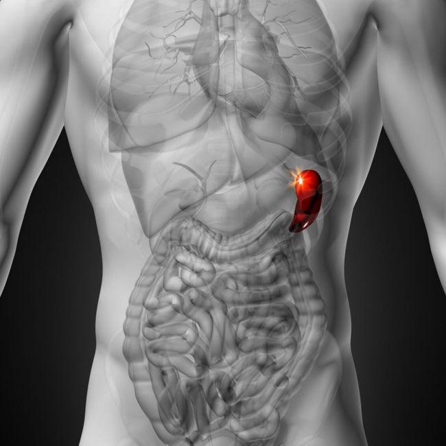 Thrombocytopenia causes