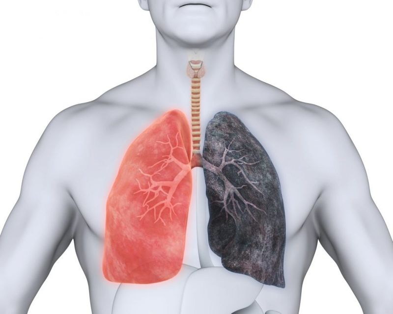 complications of emphysema