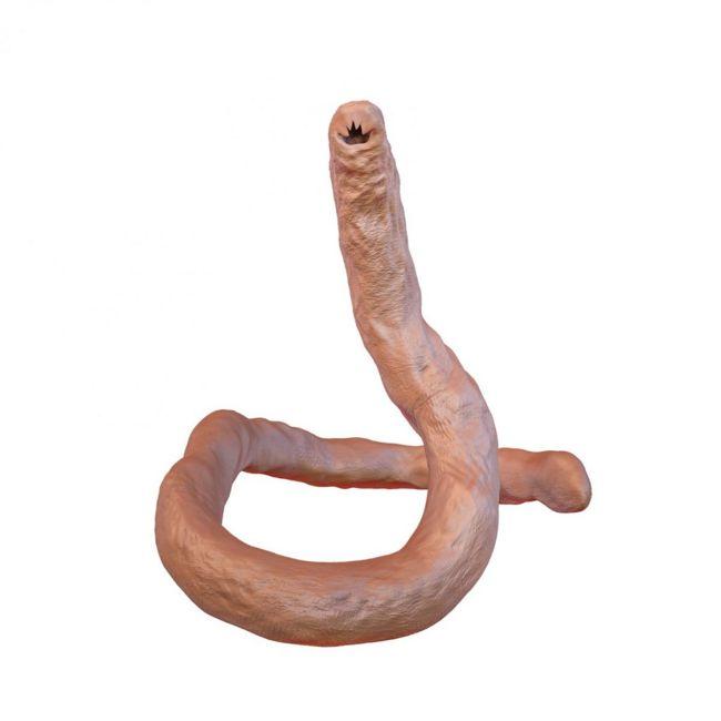 roundworm infection