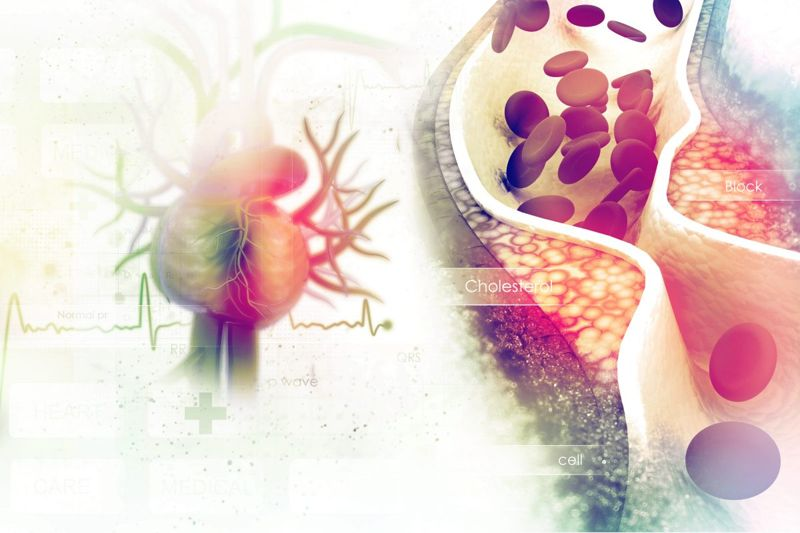 What Are the Causes of Atherosclerosis?