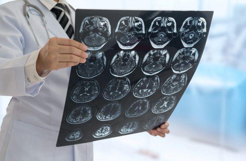 complications brain aneurysm