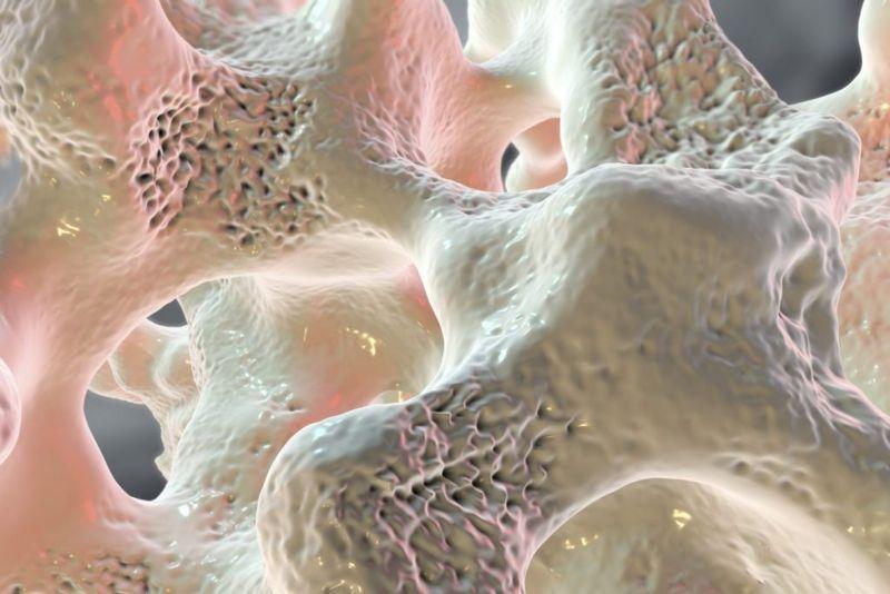 progression of osteomalacia