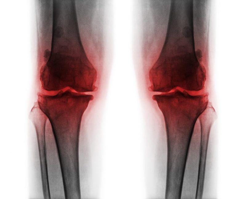 bone spurs symptoms