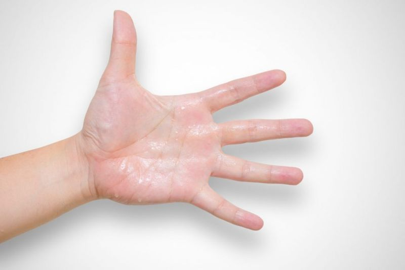 symptoms of hyperhidrosis