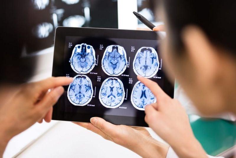 medical imaging brain