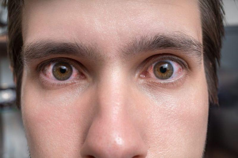 what is Thyroid eye disease