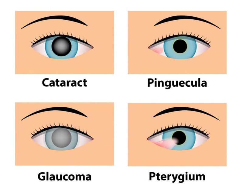 pterygium eyes