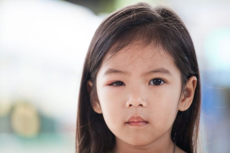 Signs and Symptoms of Anisocoria