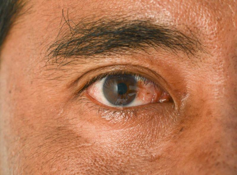 pterygium eye