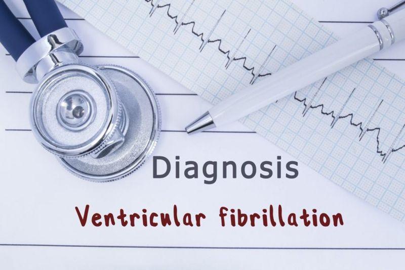 types of Ventricular fibrillation