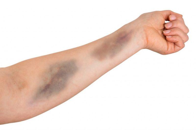 symptoms of Thrombocytopenia