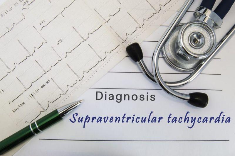 diagnosing tachycardia