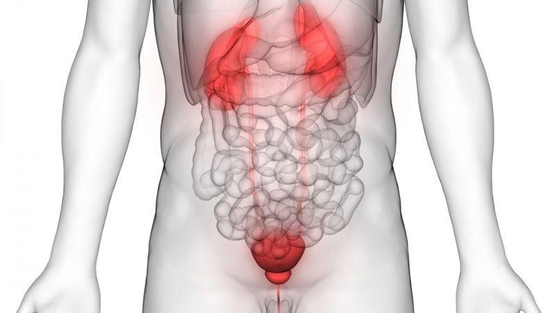 what does leukocytes in urine mean
