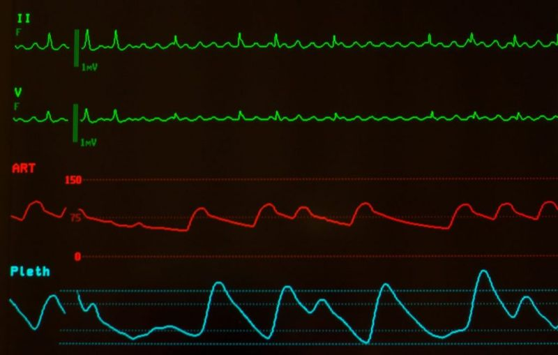 flutter types of tachycardia
