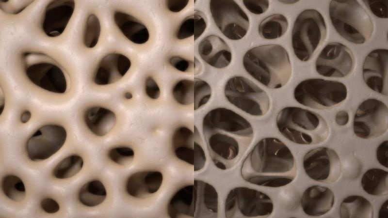 bone density test information