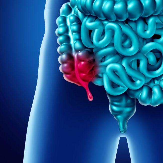 What causes appendicitis?