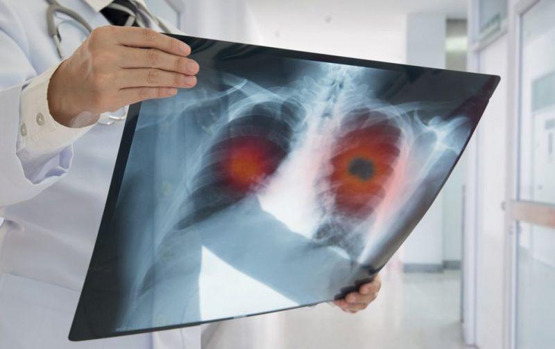 diagnosing emphysema