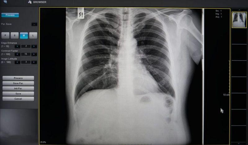 x ray rib injury