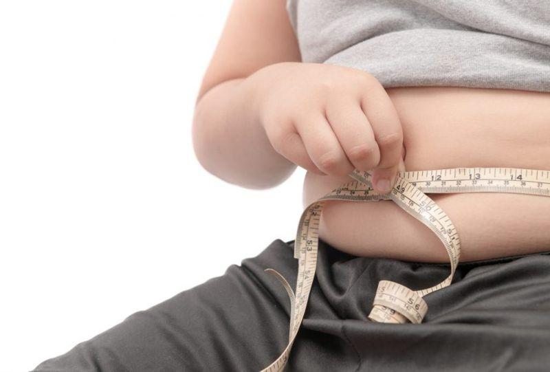 obesity Achilles tendon