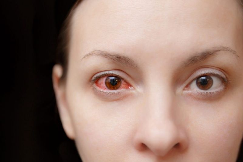 doctors inflamed iris