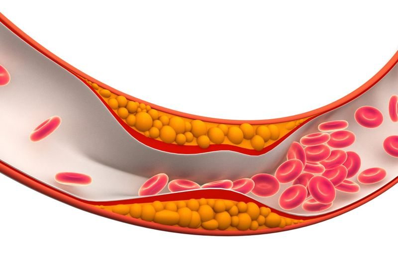 How Does Atherosclerosis Develop?