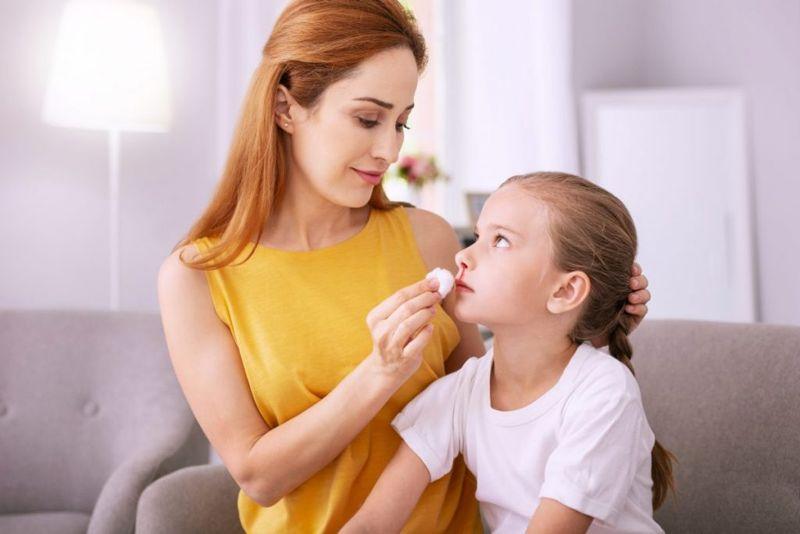 treating nosebleeds
