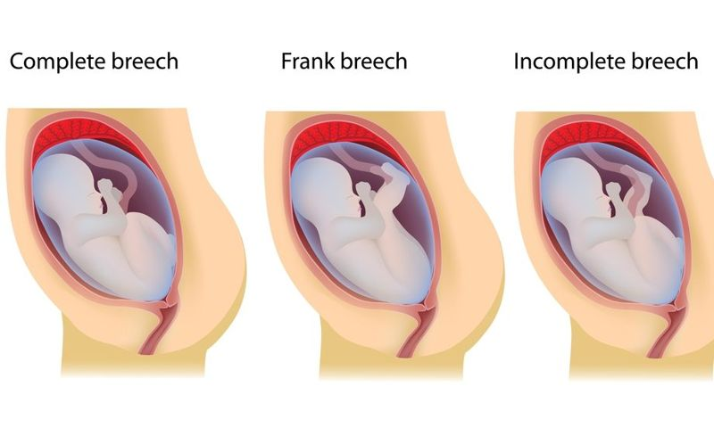 breeches meconium aspiration syndrome