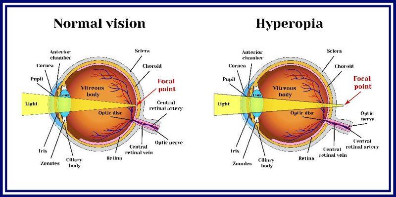 symptoms of Hyperopia
