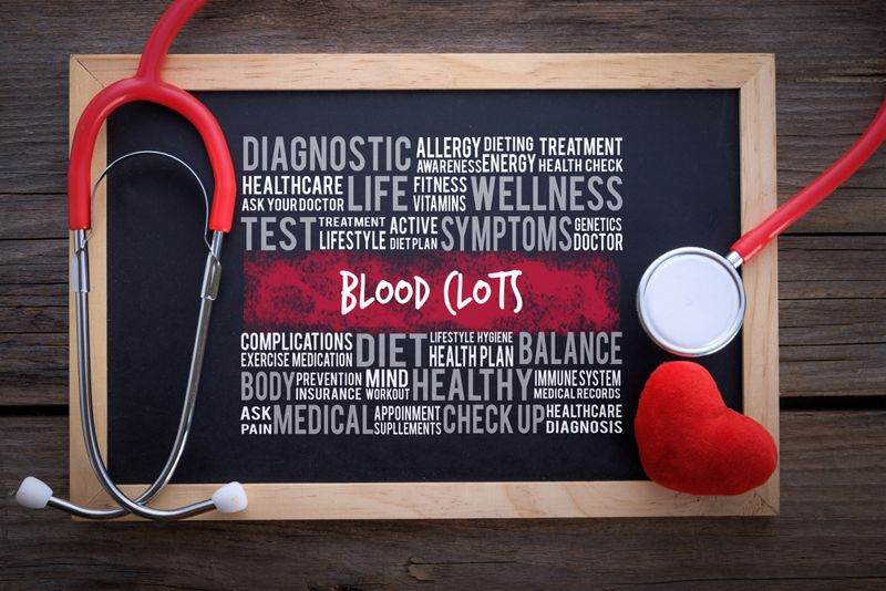 Causes of Blood Clots