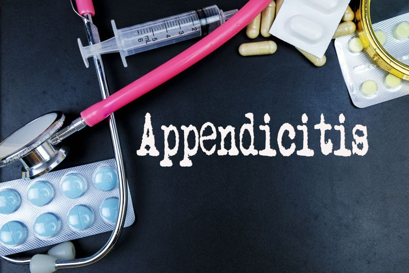 Causes and Treatment of Appendicitis