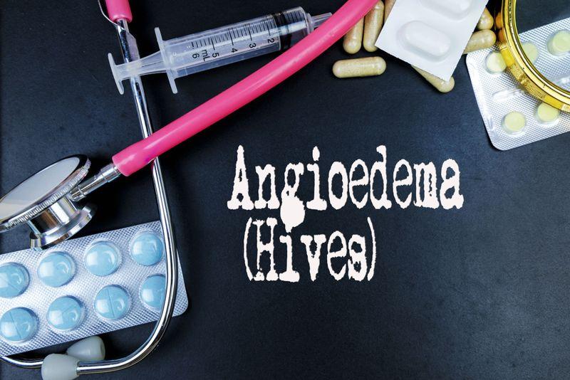 Treatments for Angioedema