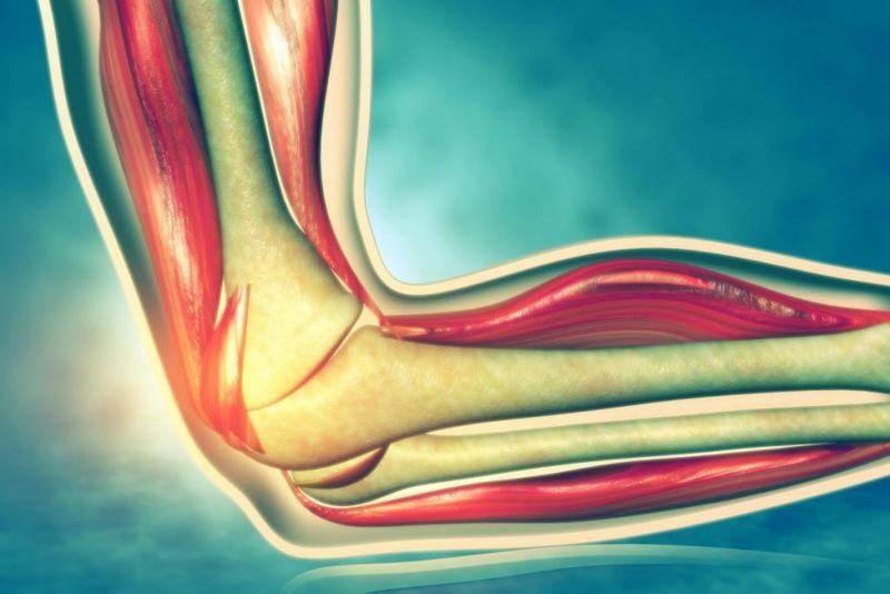 syndrome Ulnar nerve entrapment