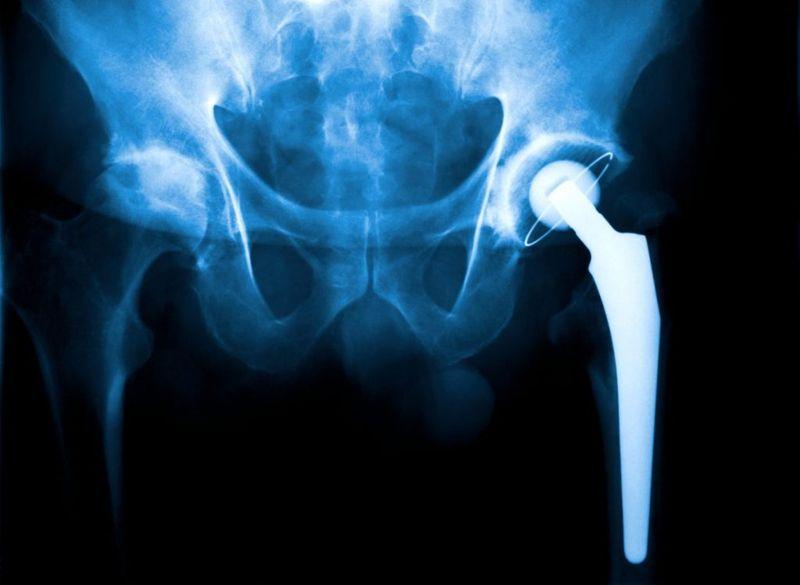 replacement hip impingement