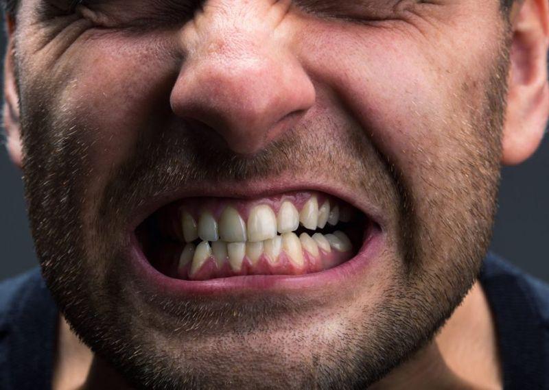 teeth grinding Bruxism