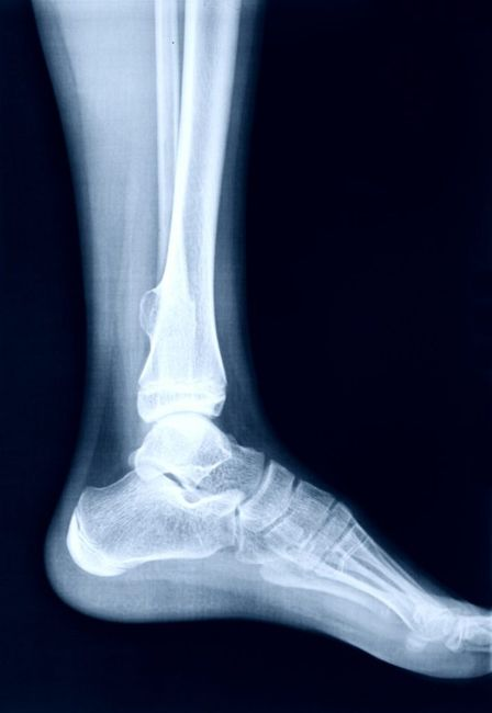 walking March fracture