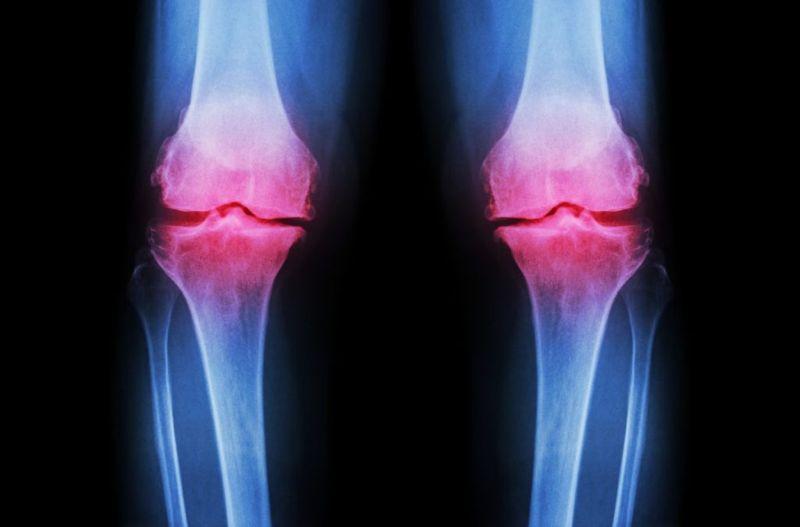 symptoms of arthrosis