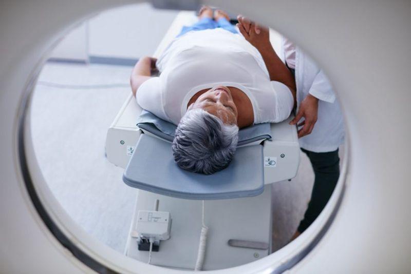 diagnosing proptosis