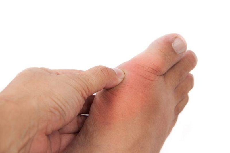 March fracture bruising