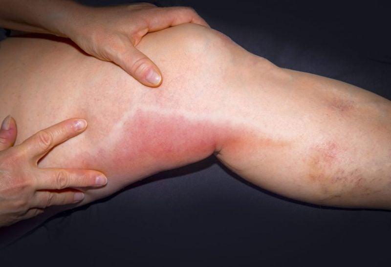 symptoms of Phlebitis