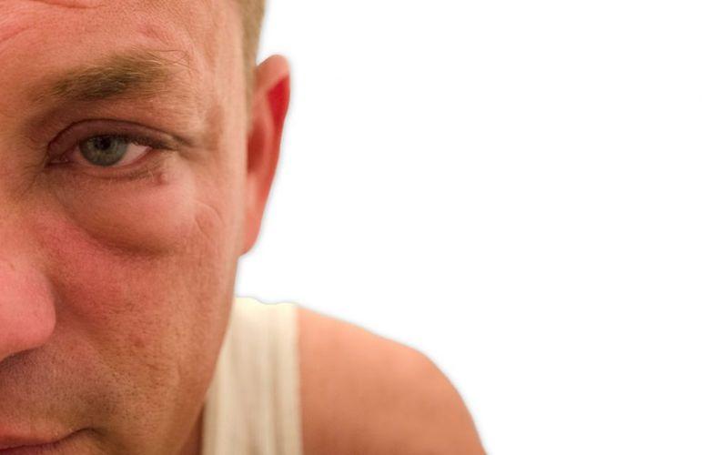 common Thyroid eye disease