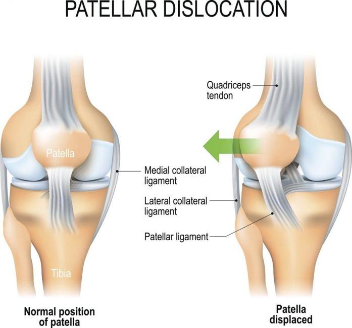 symptoms of Patellar dislocation