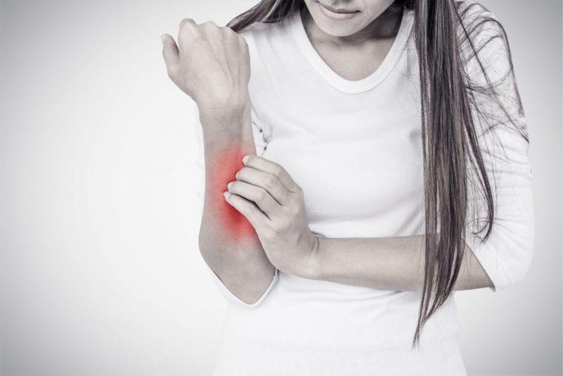 arthritis Baker's Cysts