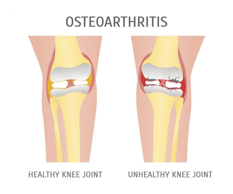 how does arthrosis develop