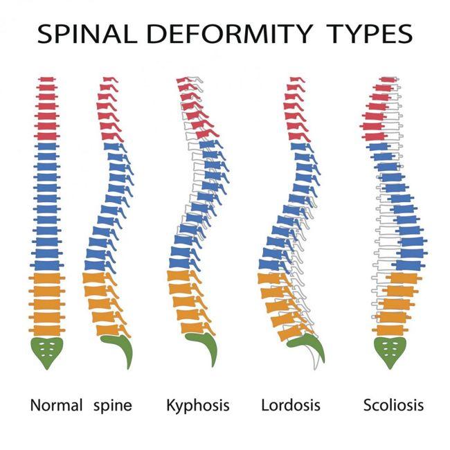 deformity Scheuermann's disease