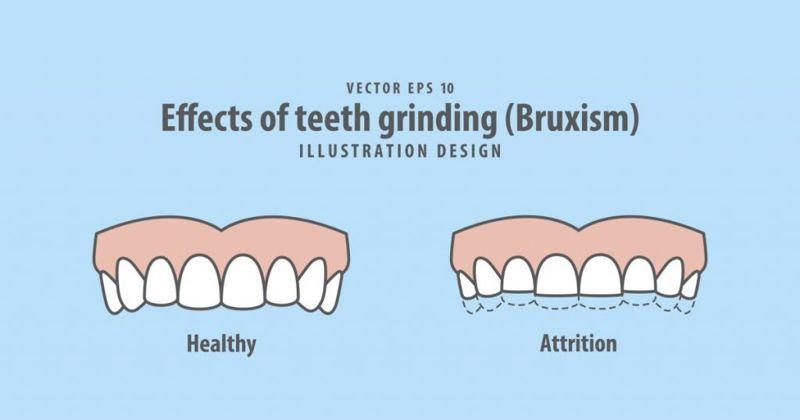 teeth Bruxism