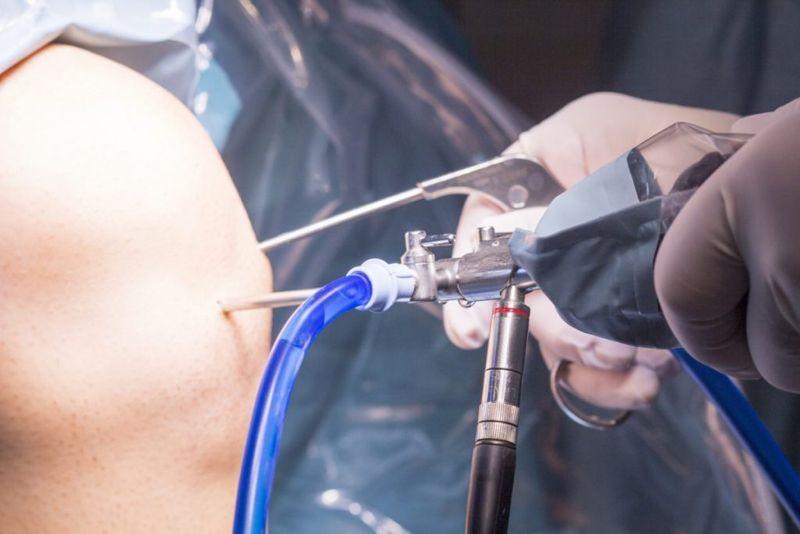treatments Pigmented Villonodular Synovitis